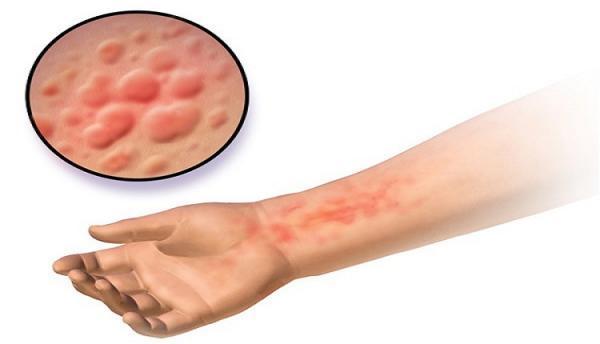 درمان بیماری زونا در طب سنتی